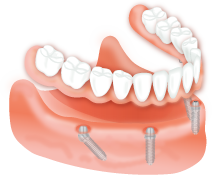 Dental Implants - All-on-Four