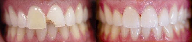 Porcelain Veneers - Before and After